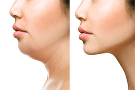 sama medtour | medical tourism Double-chin-Reduction