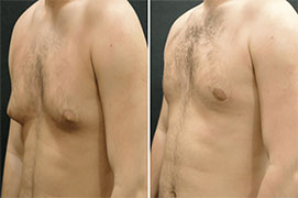 sama medtour | medical tourism Male-Breast-Reduction-Surgery