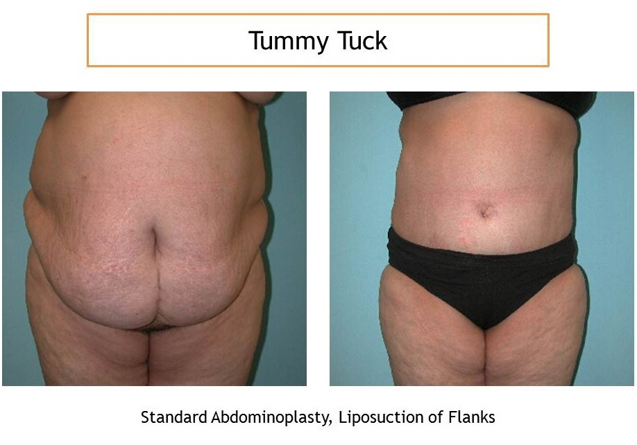 tummy tuck – abdominoplasty in Iran samamedtour