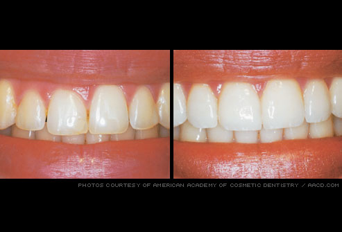 gum_reshaping before and after photo