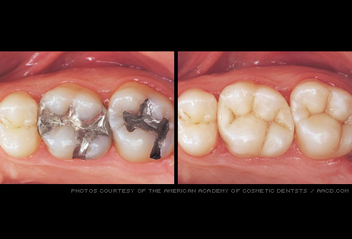 tooth_colored_fillings before and after photo