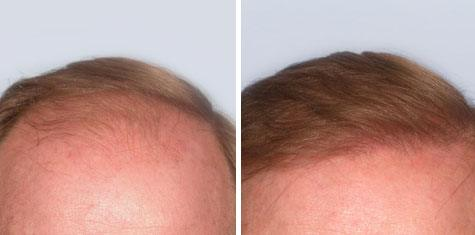 BEFORE AND AFTER – Frontal Hairline FUT 2,658 Graft