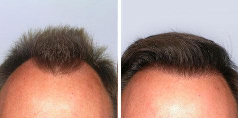BEFORE AND AFTER – Frontal Hairline FUT 1,852 Grafts