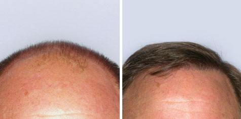 BEFORE AND AFTER – Frontal Hairline and Forelock FUT 2,945 Grafts
