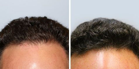 BEFORE AND AFTER – Frontal Hairline FUT 875 Grafts