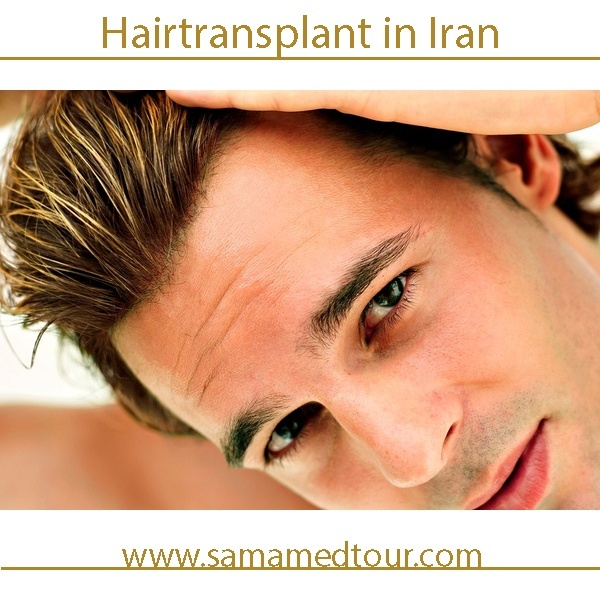 Hair transplant before and after photos in Iran