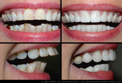 photo_of_smile_makeover