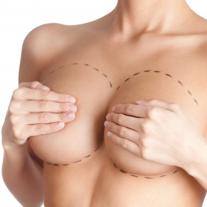 REVISION-BREAST-IMPLANTS