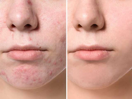 acne scars,acne,medical tourism,iran_treatment,health tourism