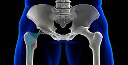 total hip artroplasty iran