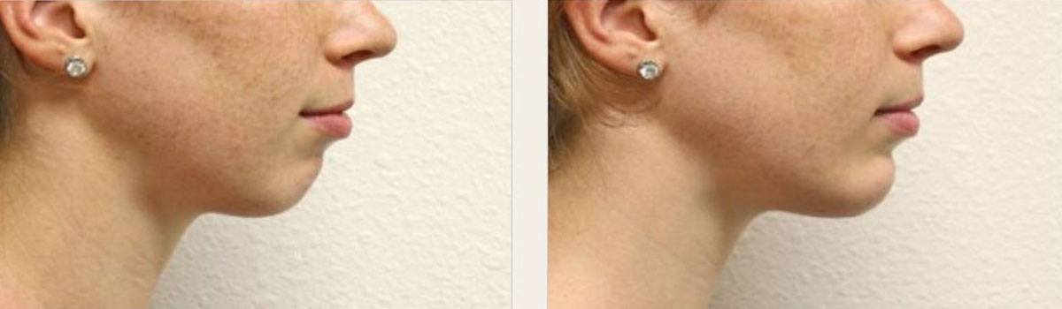 Chin Implant Surgery Iran